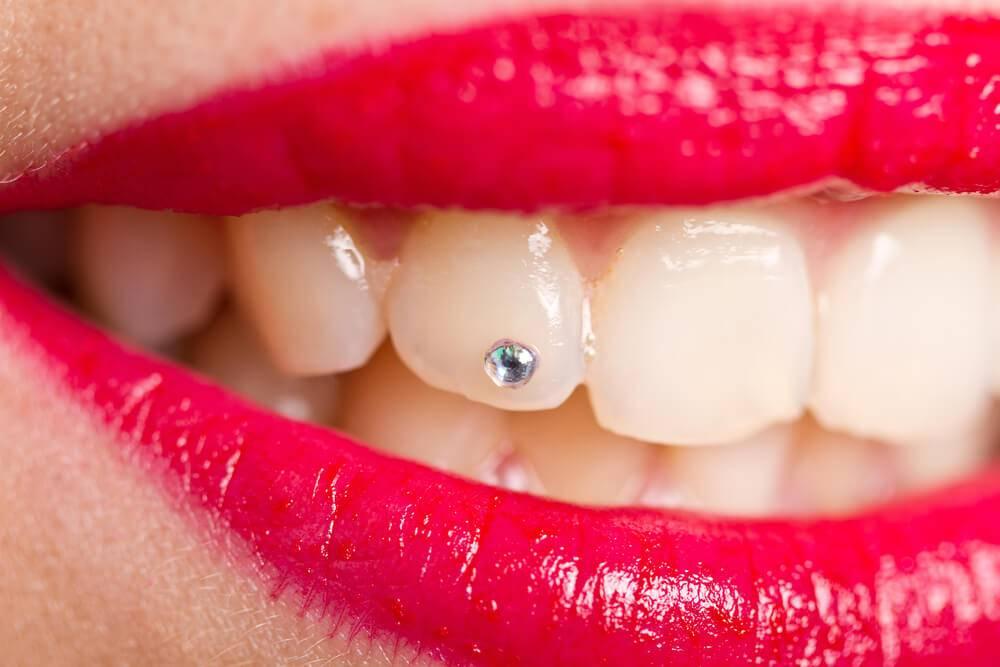Piercing no dente: entenda os prós e contras desse estilo