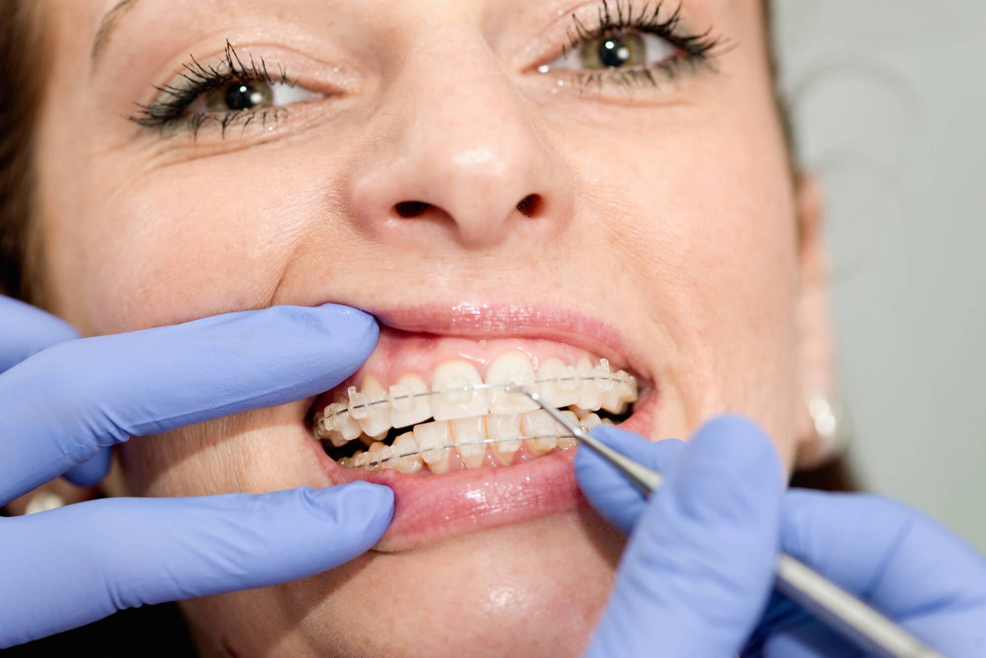 Vale a pena oferecer aparelhos dentários transparentes na clínica?