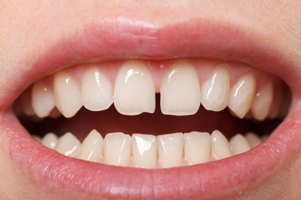 Diastema: a causa dos dentes separados e as possíveis soluções