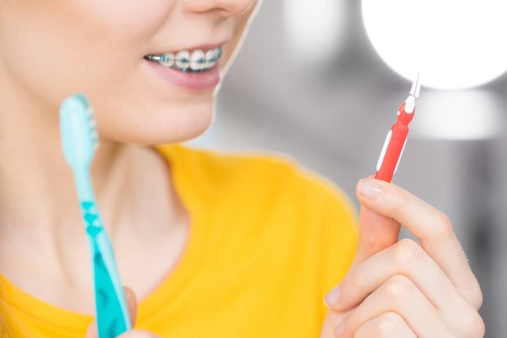 O que é preciso para tornar a limpeza de aparelho dental mais fácil?