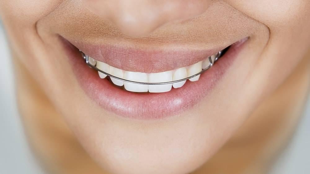 Contenção nos dentes X aparelho dentário: entenda a diferença